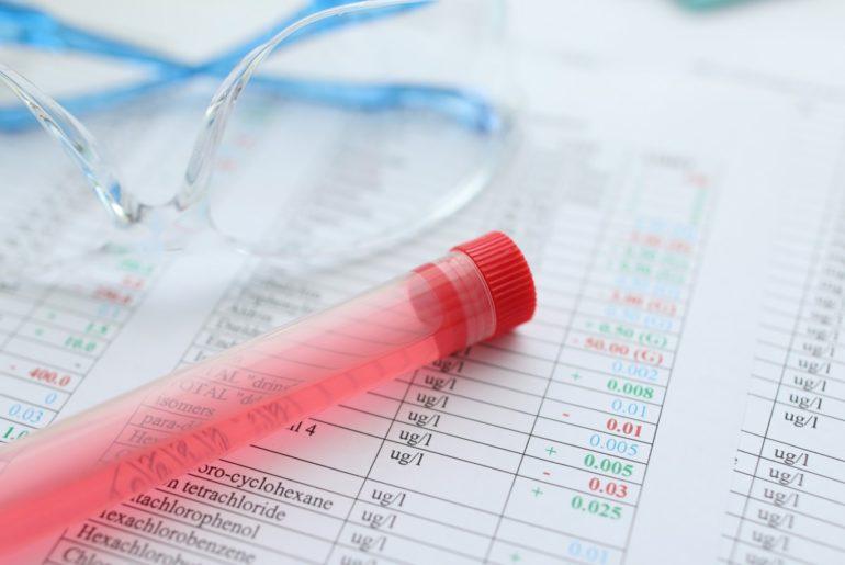 exame-toxicologico-para-motoristas-1-770x515